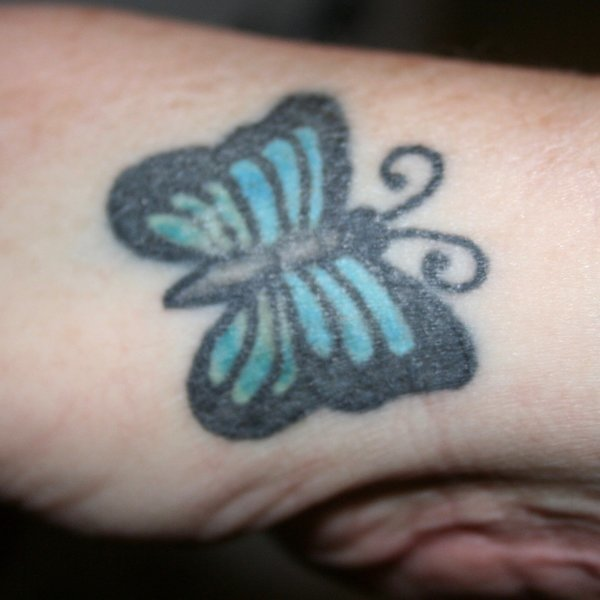 8 Tips for Getting Rid of That Unwanted Tattoo
