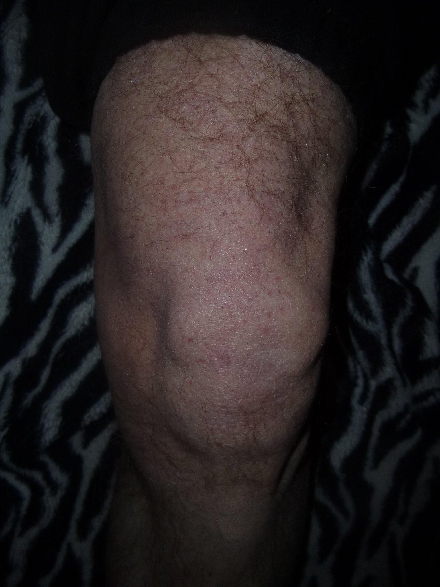 Knie + Schmerzen